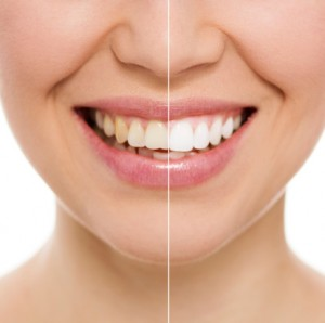Orinda teeth whitening