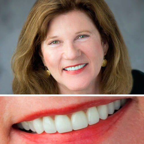 A collage of before and after a patient's restored smile